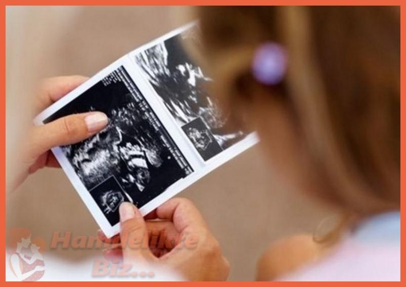 Doğmamış Bebekte Genetik Analizi Ne Zaman Gerekir?