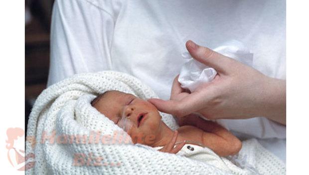 Erken Doğan Bebeğin Sorunları Nelerdir?
